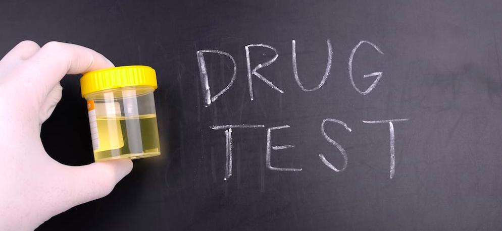 Best Recommendations to Prepare for a Cannabis THC Drug Test